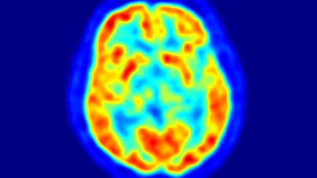 Světový den Parkinsonovy nemoci